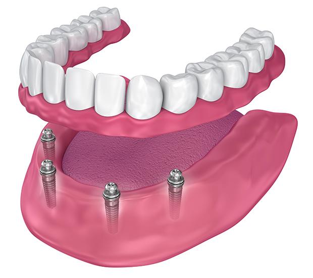 West Linn All-on-4 Implants