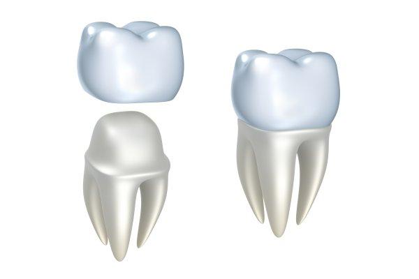 Dental Crowns West Linn, OR
