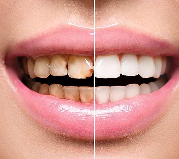 West Linn Dental Implant Restoration