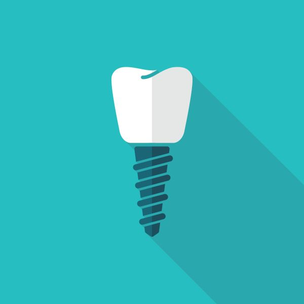 dental implants West Linn, OR