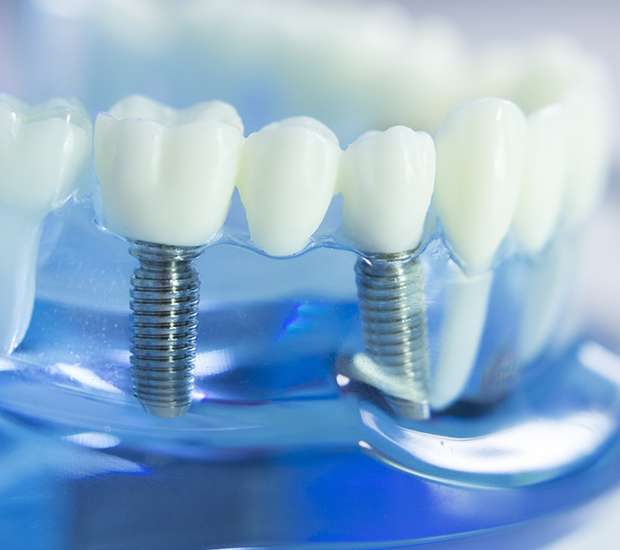 West Linn Dental Implants
