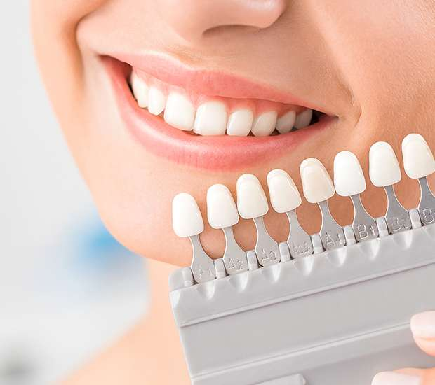 West Linn Dental Veneers and Dental Laminates