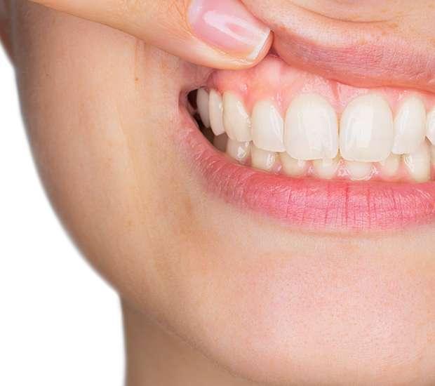 West Linn Gum Disease